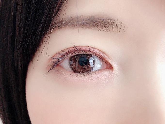 角膜移植とは